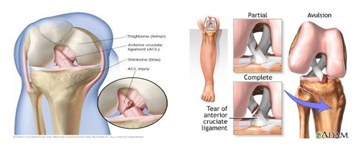 acl-anterior-cruciate-ligament-injury