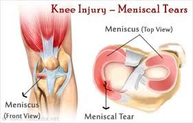 damaged-meniscus