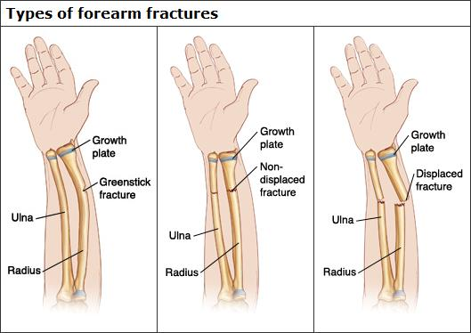 forearm-fractures