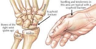 fractured-wrist