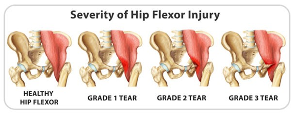 hip-flexor-injury