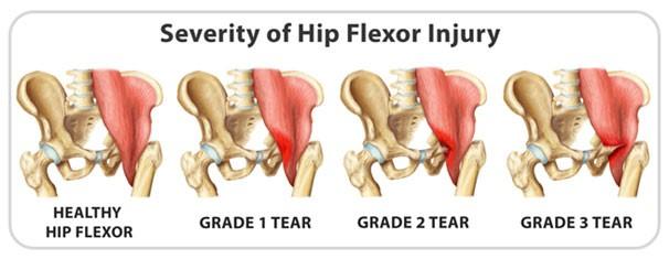 hip-flexor-injury
