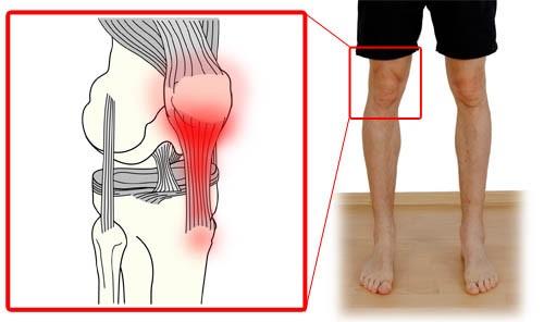 patellar-tendonitis